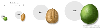 Tumor size compared to everyday objects; shows various measurements of ...