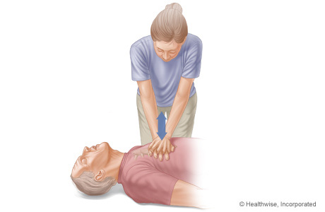 Picture of arm and body positions for doing chest compressions
